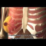 Προσέγγιση Καρκίνου του Μαστού